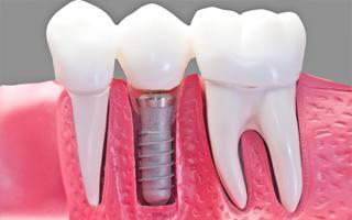 http://www.tandartsenpraktijk-kieskeurig.nl/wp-content/uploads/2015/11/diensten-implantaten.jpg