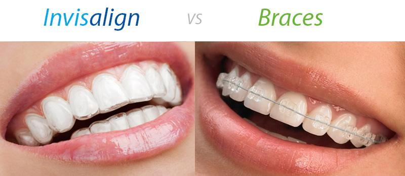 http://www.tandartsenpraktijk-kieskeurig.nl/wp-content/uploads/2017/08/Invisalign-vs-clear-ceramic-braces.jpg